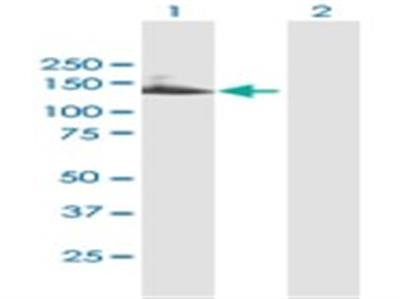 TTC18 Antibody