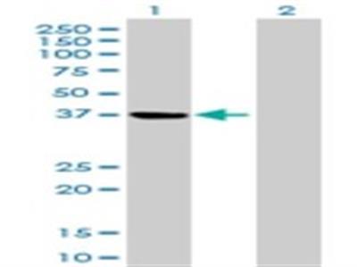 PSAT1 Antibody