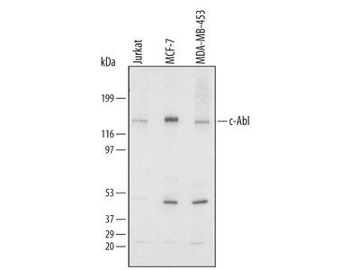 Human c-Abl Antibody