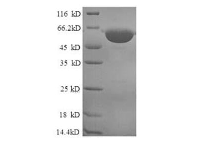 Recombinant Human mitochondrial peptide methionine sulfoxide reductase isoform a
