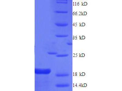 Recombinant human Gap junction alpha-1 protein