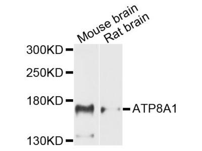 ATP8A1 Polyclonal Antibody