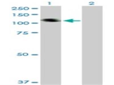 Collagen XXI Antibody