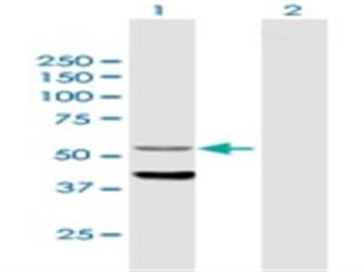 CYP4F12 Antibody