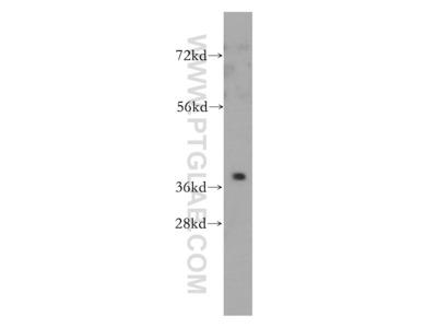 PTGR2 Polyclonal Antibody