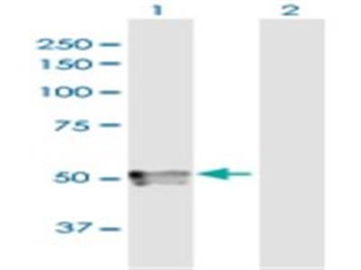 Testican 3 / SPOCK3 Antibody