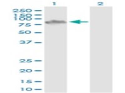 ZCCHC7 Antibody