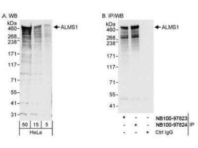 Rabbit Polyclonal ALMS1 Antibody
