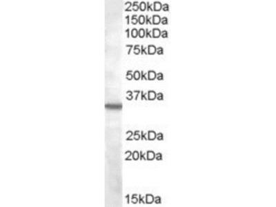 Goat Polyclonal Bradykinin RB1 / BDKRB1 Antibody