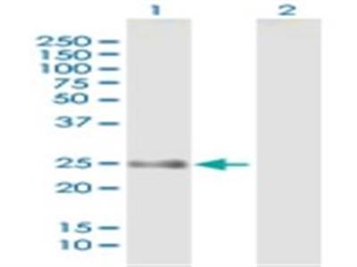 FLJ14154 Antibody