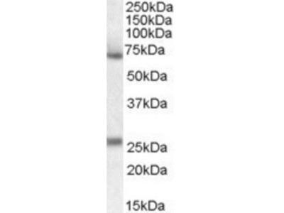Serpin F2 /alpha 2-Antiplasmin Antibody