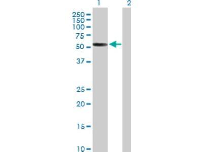 Antibody is Non-Specific