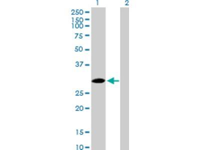 SPSB2 Antibody