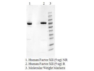 Human coagulation Factor XII
