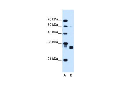CBR1 antibody - C-terminal region (ARP45801_T100)