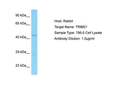 TRIM21 antibody - C-terminal region (ARP38248_T100)