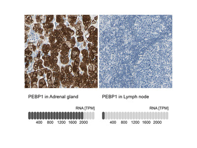 Anti-PEBP1