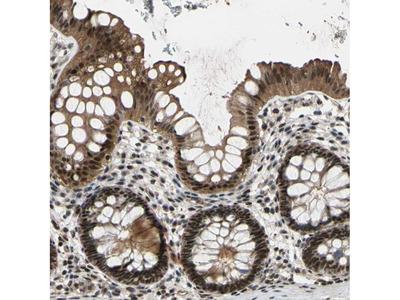 Anti-THAP12 Antibody