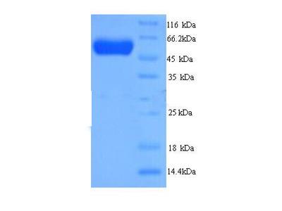 Recombinant Danio rerio D-2-hydroxyglutarate dehydrogenase, mitochondrial (d2hgdh)