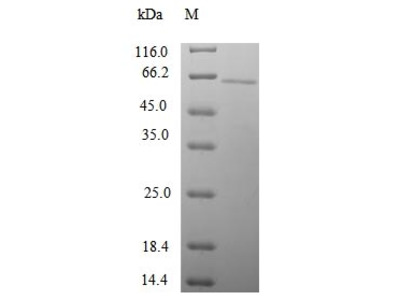 Recombinant Human Gamma-1-syntrophin (SNTG1)