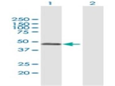 RCN2 Antibody