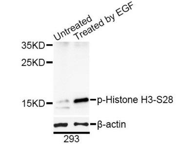 Phospho-HIST1H3B-S29 Polyclonal Antibody