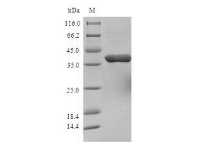 Recombinant Human Sjoegren syndrome nuclear autoantigen 1 (SSNA1)