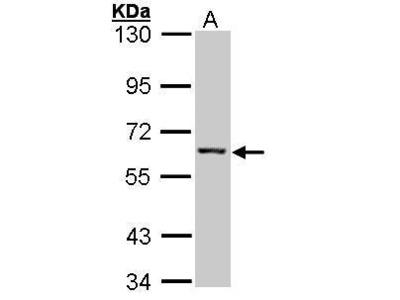 Anti-IMPDH2 antibody