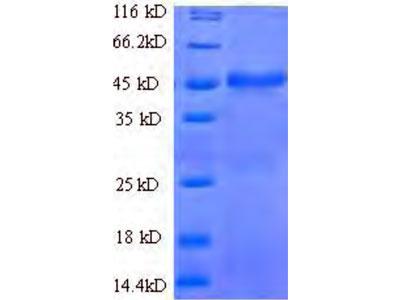 Recombinant Human 1-acyl-sn-glycerol-3-phosphate acyltransferase beta (AGPAT2)