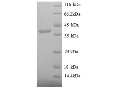 Recombinant human Signal recognition particle 14 kDa protein