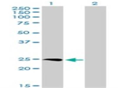 SSX3 Antibody
