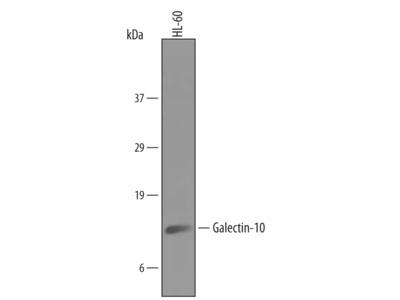 Human Galectin-10 Antibody