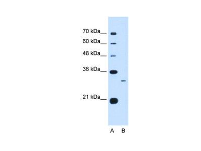 C1QB antibody - C-terminal region (ARP44297_P050)