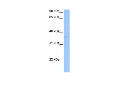 TREML2 antibody - middle region (ARP49878_P050)