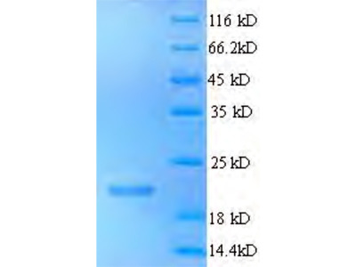Recombinant Human Sal-like protein 2 (SALL2),partial