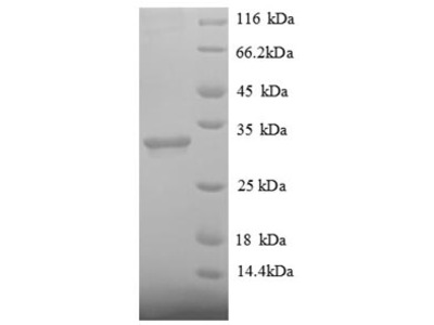 Recombinant human Histone deacetylase 7