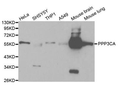 PPP3CA Polyclonal Antibody