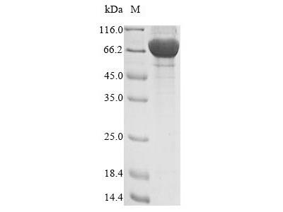 Recombinant Human Dentin matrix protein 4 (FAM20C)