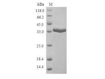 Recombinant Human Mammaglobin-A (SCGB2A2)