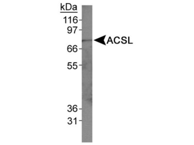 Rabbit Polyclonal ACSL1 Antibody