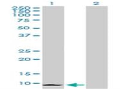 CXCL6 / GCP-2 Antibody
