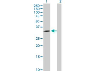 Aprataxin Antibody