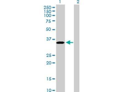EPCR Antibody