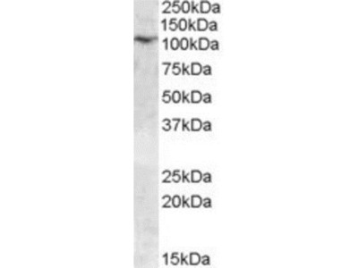 Goat Polyclonal TRPC6 Antibody