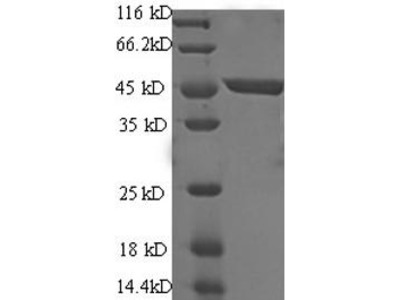 Recombinant Human Immunoglobulin-like domain-containing receptor 2 (ILDR2)