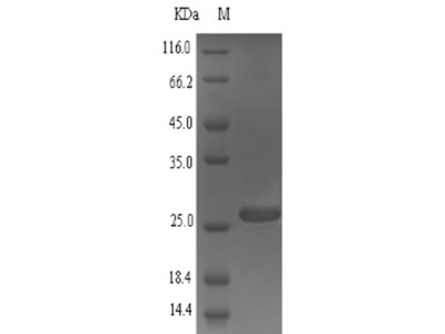 Recombinant Mouse Small proline-rich protein 2A