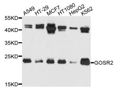 GOSR2 Polyclonal Antibody
