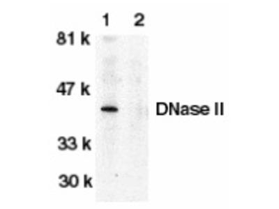 RABBIT ANTI HUMAN DNASE II (C-TERMINAL)