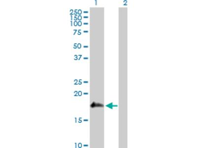 Review for Anti-SSH2 Antibody
