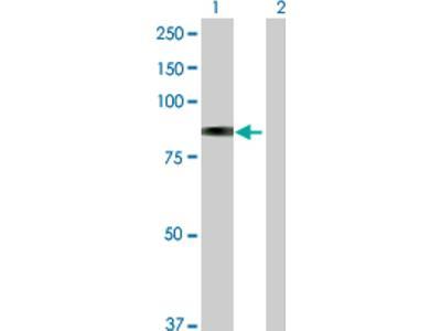 beta-Galactosidase-1 / GLB1 Antibody